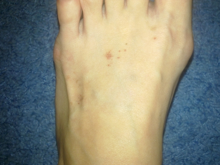 Что делать если появились косточки на ногах
